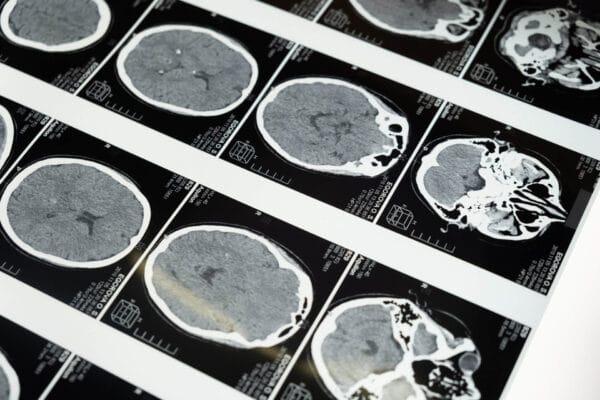 Et foto af hjernescanninger
